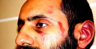 Babar Ahmad's injuries following assault