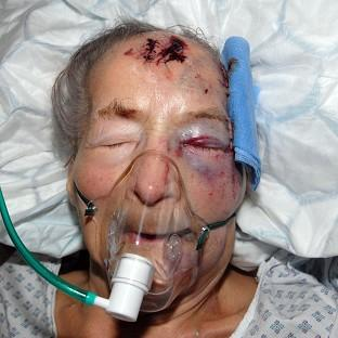 Emma Winnall, 93, who was attacked in her home nearly a month ago, has died in hospital (West Midlands Police/PA)