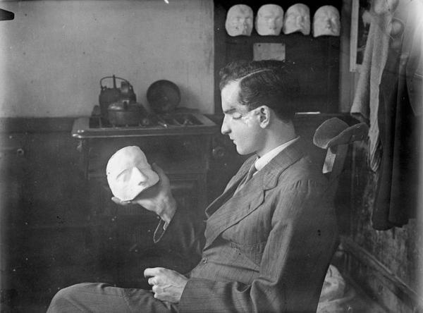 A patient at 3rd London General Hospital examines a plaster cast of his own face. This would be used to create a mask to cover his facial injuries, which can be clearly seen. (IWM)